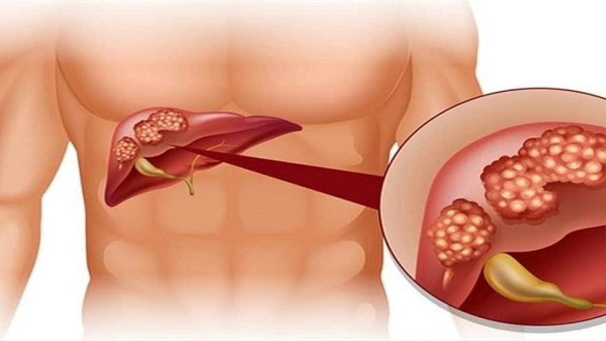 Ung thư Gan là gì? 5 điều bạn cần biết về căn bệnh này