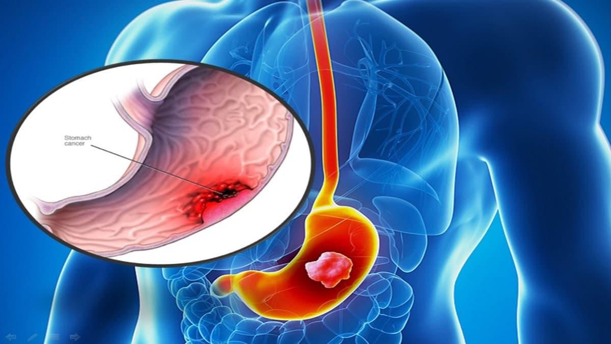 Ung thư dạ dày– Triệu chứng và 6 cách giảm nguy cơ mắc bệnh