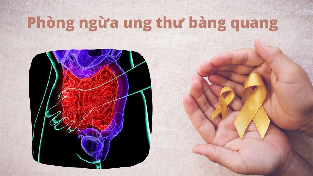 5 nhóm nguy cơ cao ung thư bàng quang và cách phòng chống chủ động