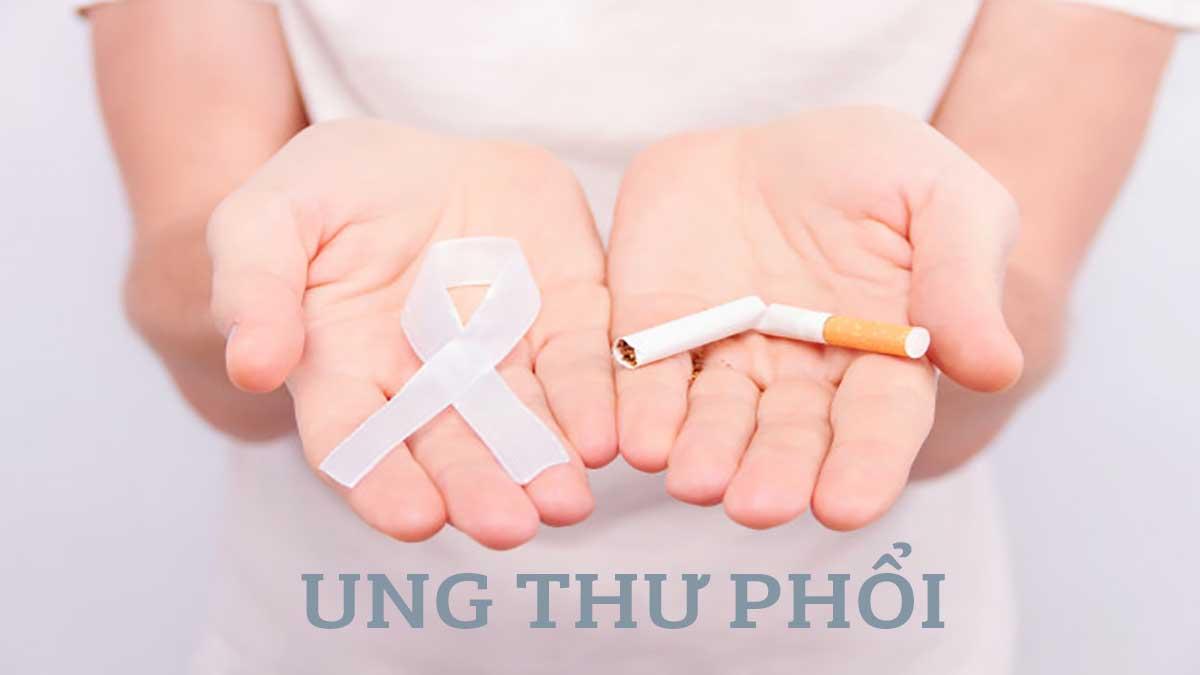 Ung thư phổi và 5 cách phòng chống hiệu quả