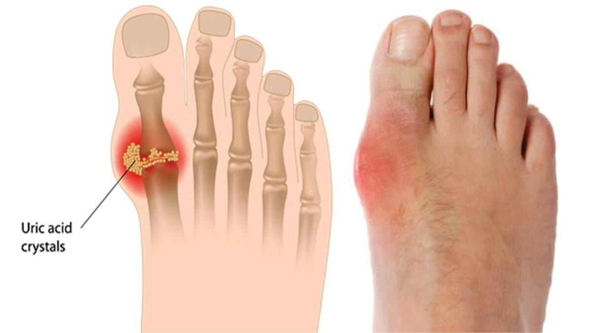 Bệnh gout là gì và cách phòng chống bệnh gout