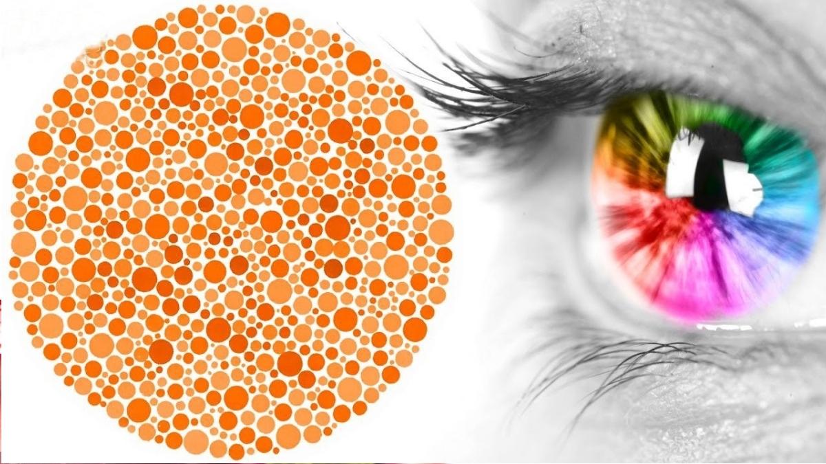 Bệnh mù màu và biện pháp điều trị bệnh mù màu