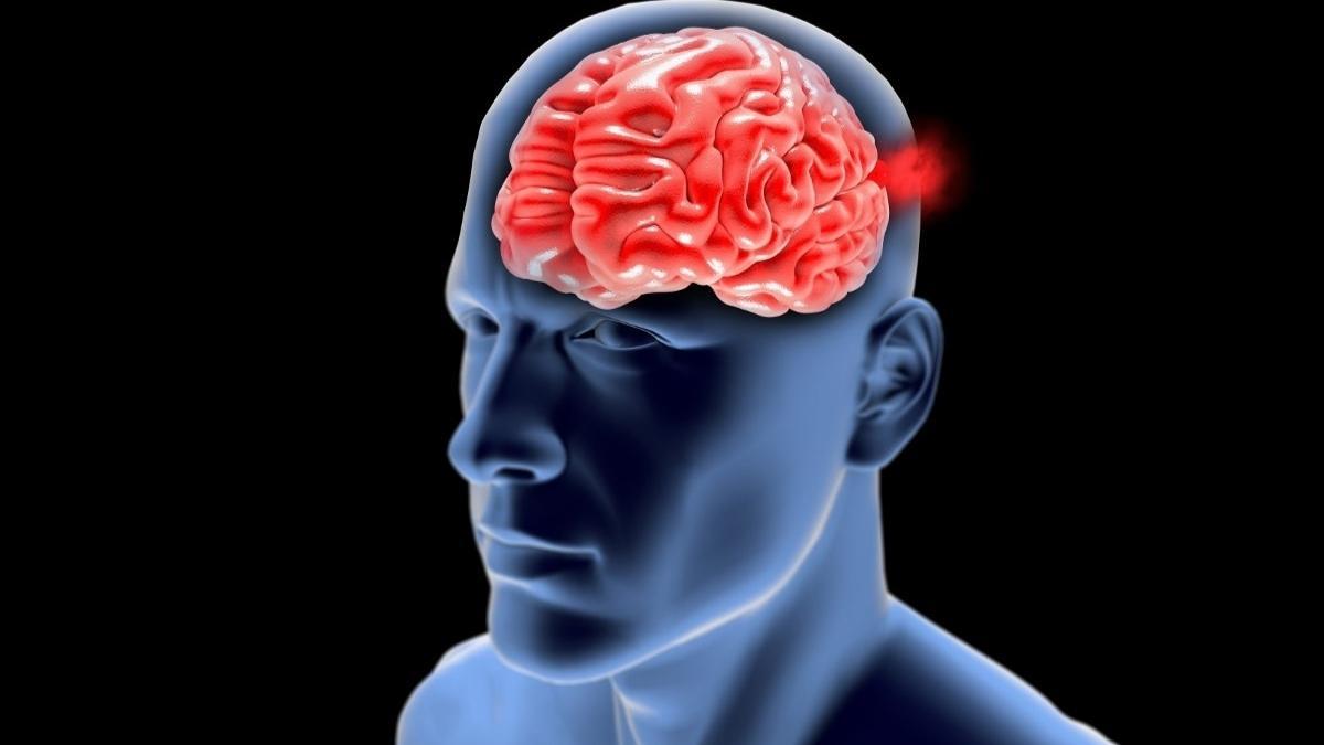 Phình động mạch não và 6 cách phòng bệnh phình động mạch não