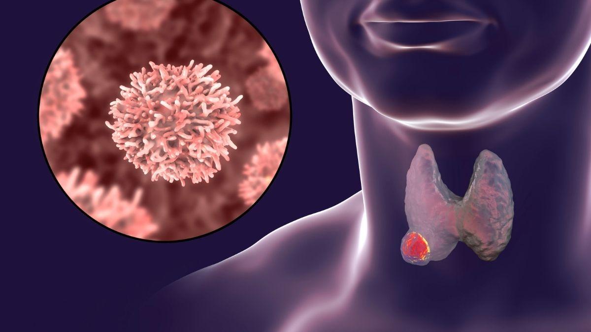 6 nguyên nhân ung thư vòm họng và cách điều trị